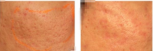 Acne scar